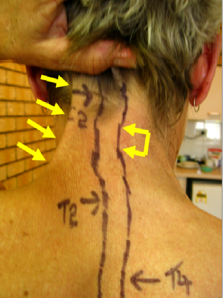 Neck Tension in a Female with Parkinson's Disease